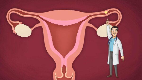 أعراض الحمل خارج الرحم وأسباب حدوثه
